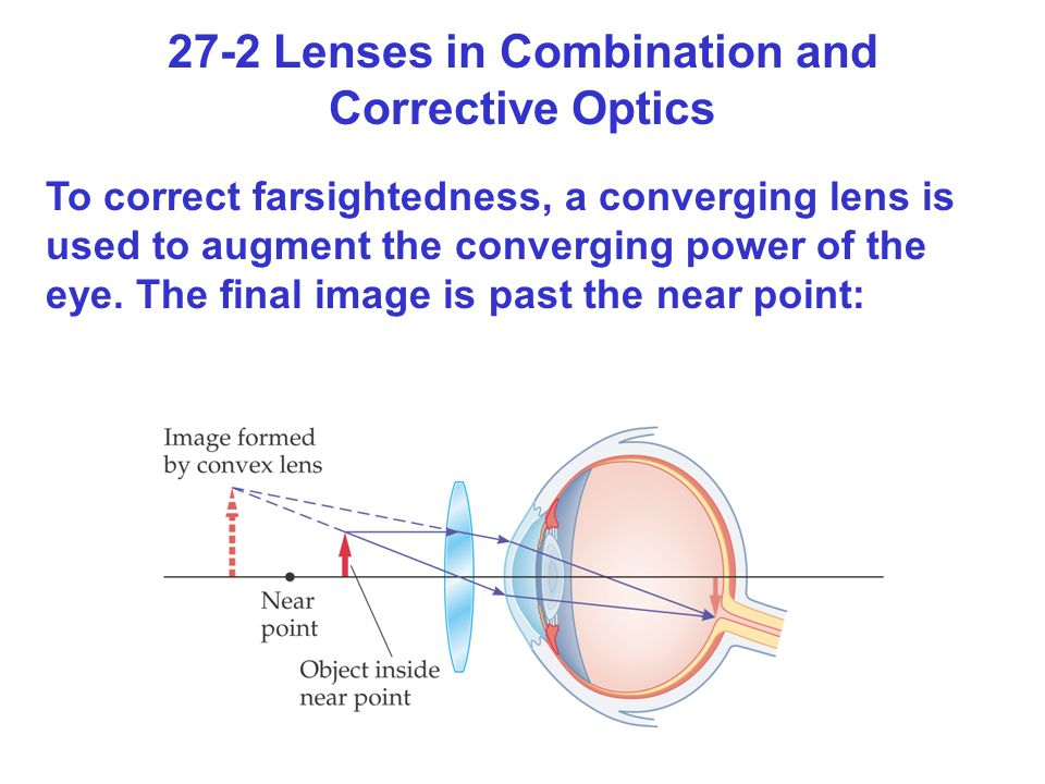27-2 Lenses in Combination and Corrective Optics
