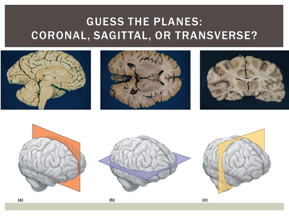 Guess the Planes: coronal, sagittal, or transverse
