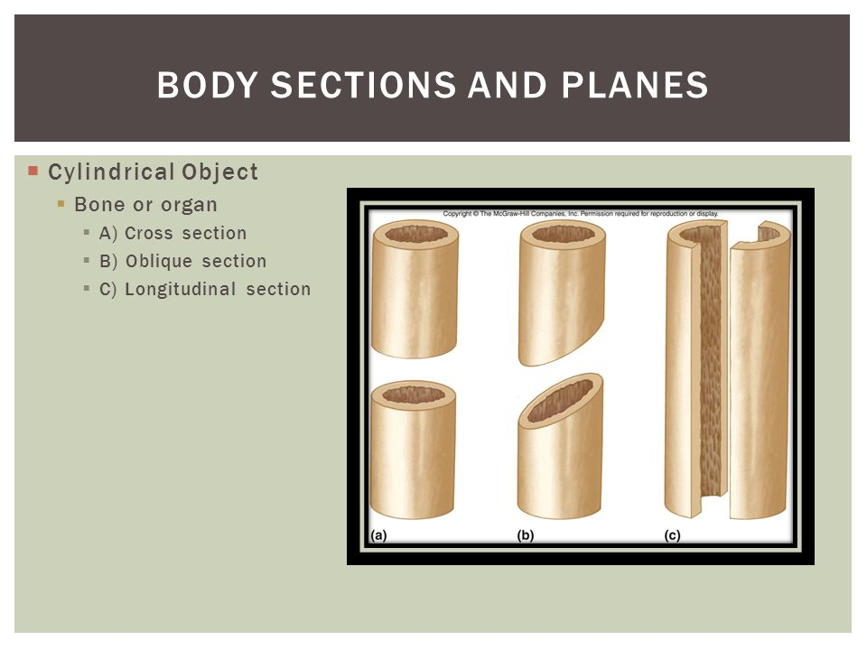 Body Sections and Planes