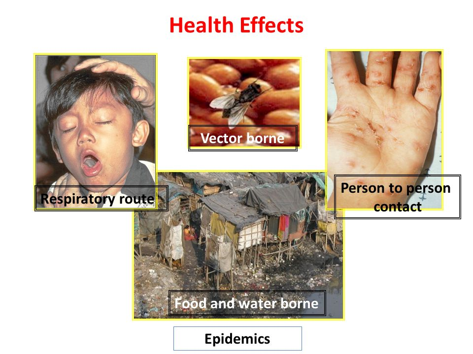 Health Effects Vector borne Person to person Respiratory route contact