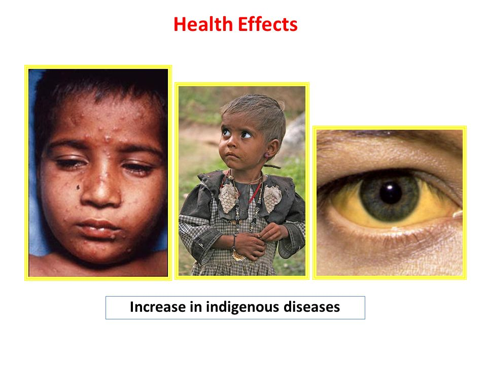Increase in indigenous diseases