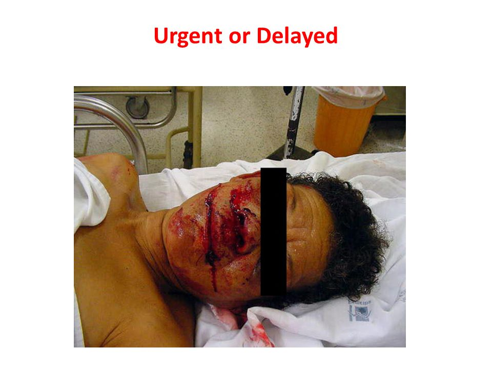 Urgent or Delayed