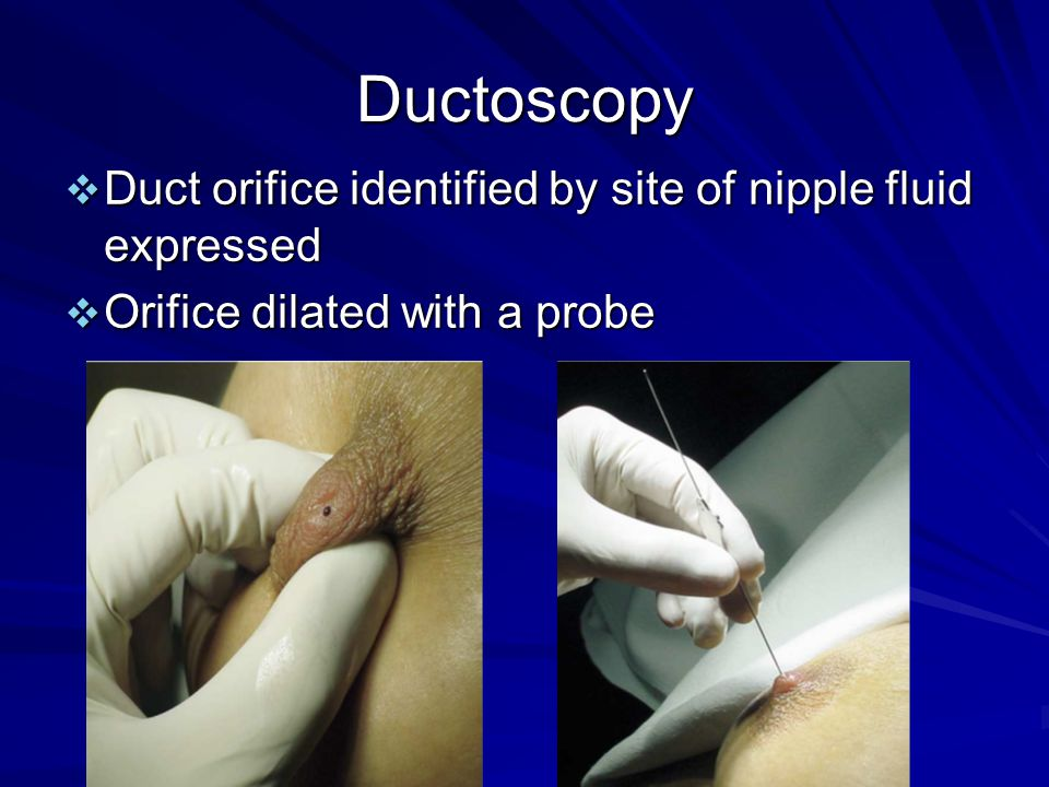 Ductoscopy Duct orifice identified by site of nipple fluid expressed