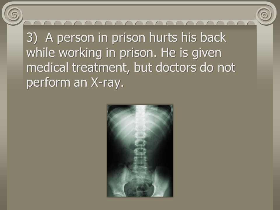 3) A person in prison hurts his back while working in prison