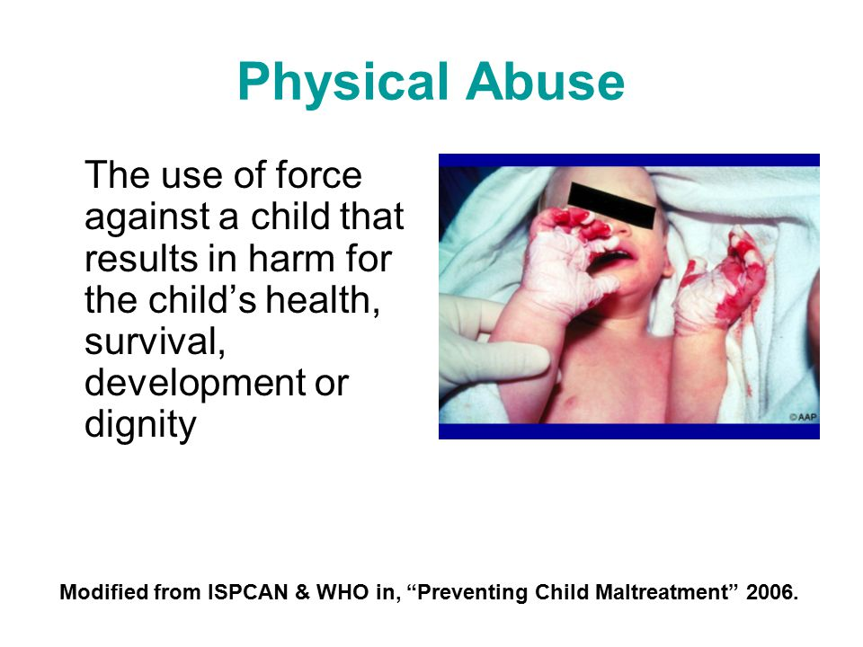 Physical Abuse The use of force against a child that results in harm for the child's health, survival, development or dignity.