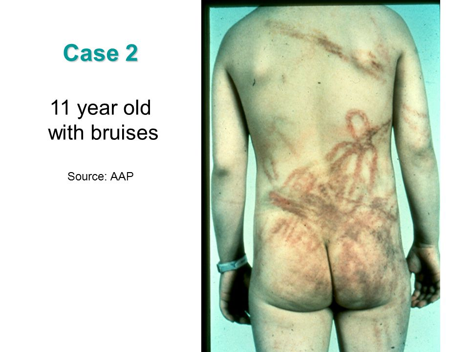 Case 2 11 year old with bruises Source: AAP