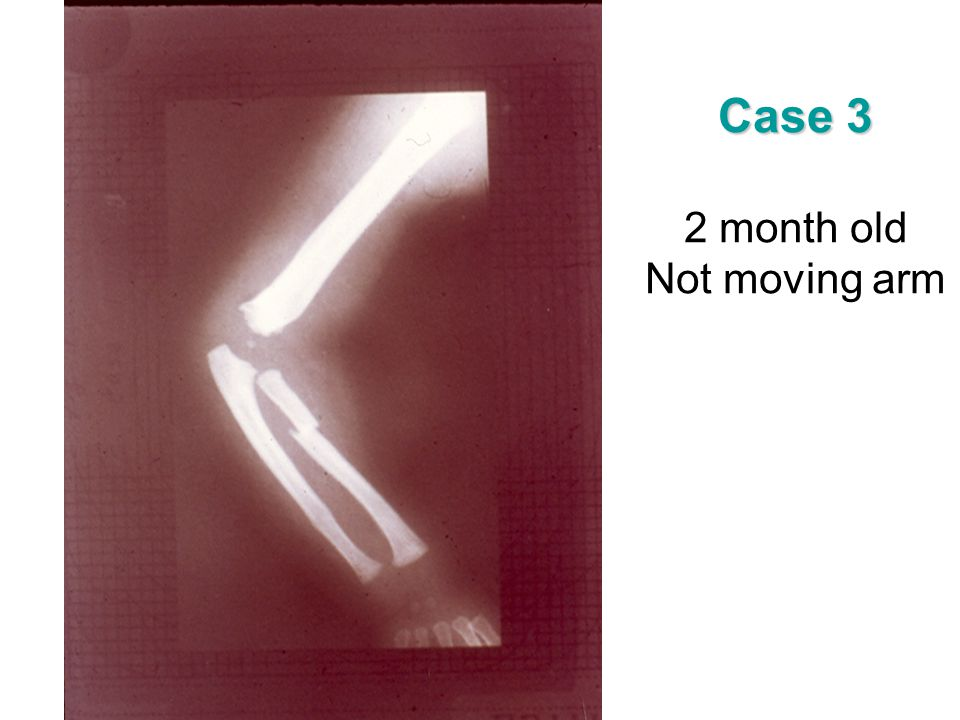 Case 3 2 month old Not moving arm