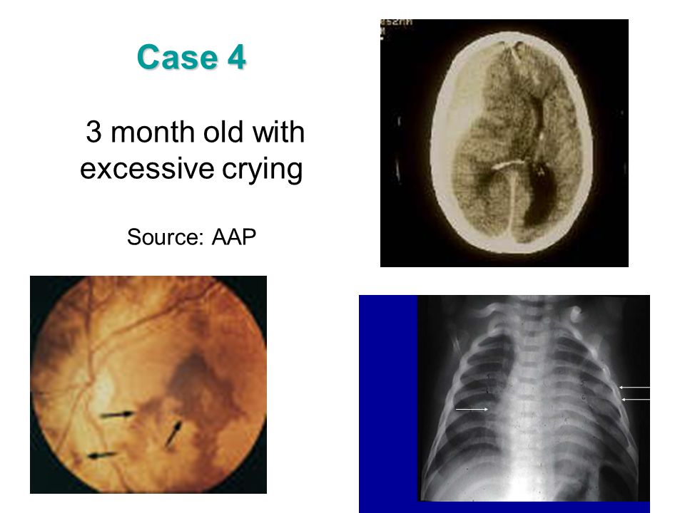 Case 4 3 month old with excessive crying Source: AAP