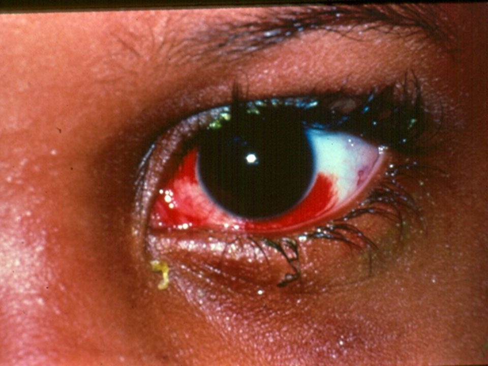 This is a sub-conjunctival hemorrhage