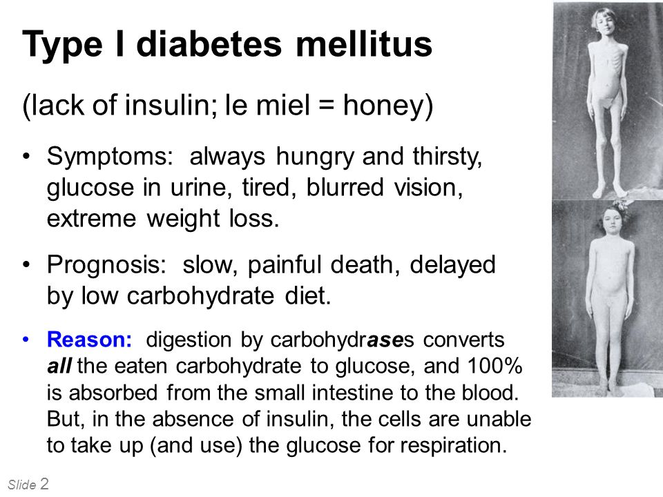 Type I diabetes mellitus
