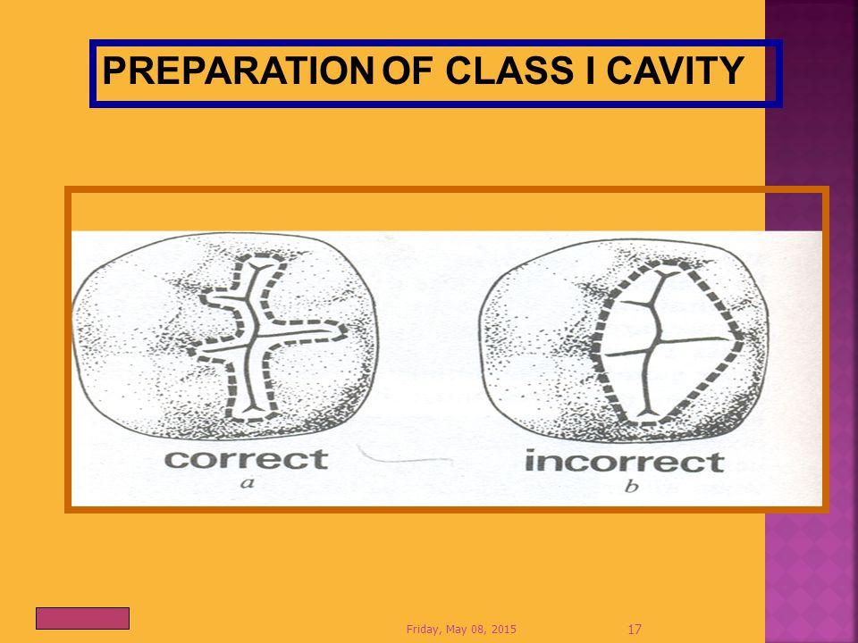 PREPARATION OF CLASS I CAVITY