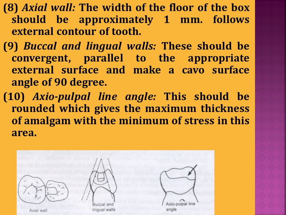 (8) Axial wall: The width of the floor of the box should be approximately 1 mm. follows external contour of tooth.