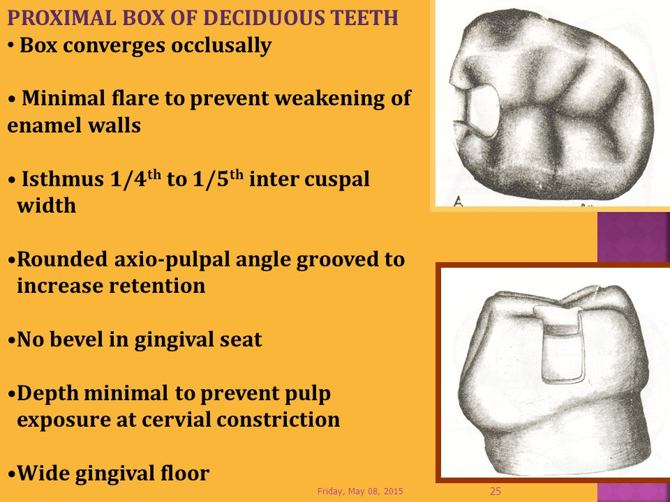 PROXIMAL BOX OF DECIDUOUS TEETH Box converges occlusally