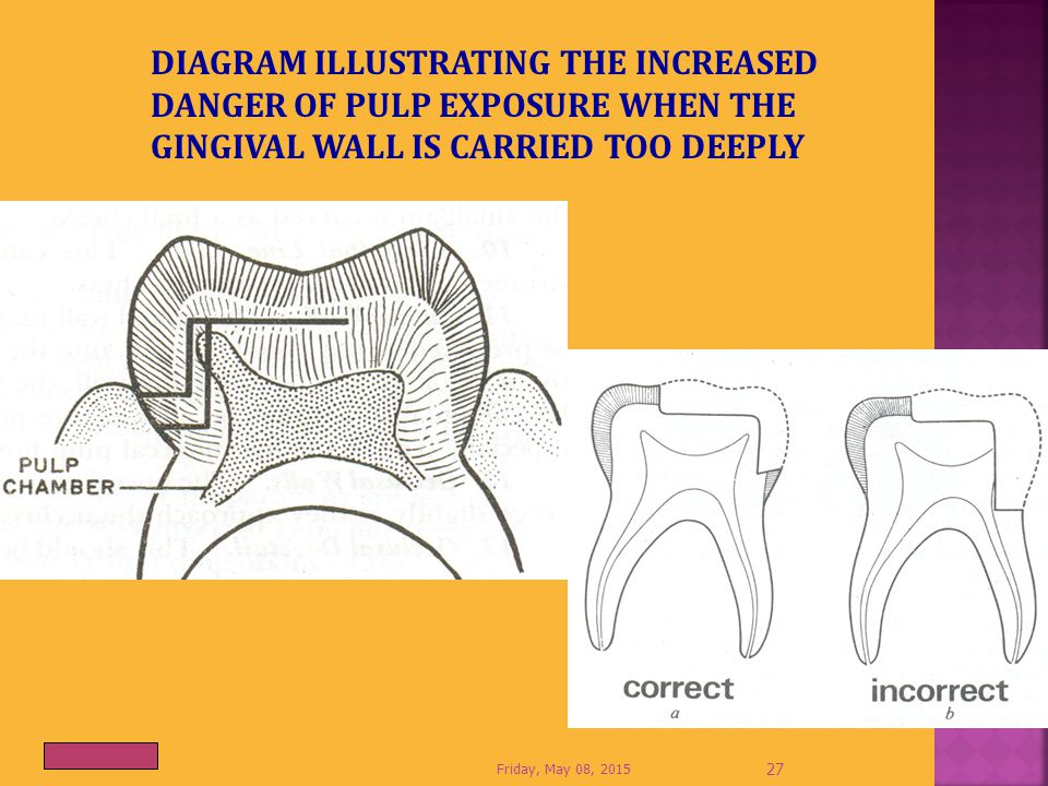 DIAGRAM ILLUSTRATING THE INCREASED DANGER OF PULP EXPOSURE WHEN THE GINGIVAL WALL IS CARRIED TOO DEEPLY