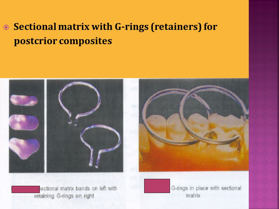 Sectional matrix with G-rings (retainers) for postcrior composites