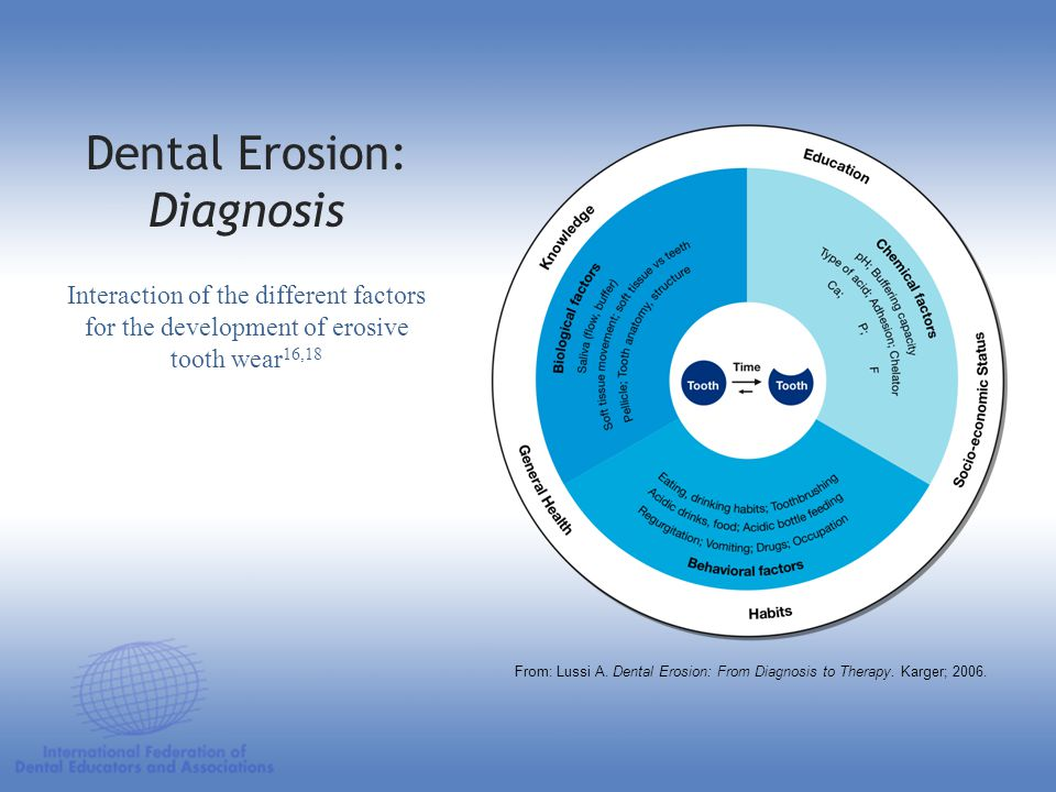 Dental Erosion: Diagnosis