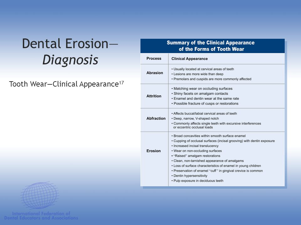 Dental Erosion—Diagnosis