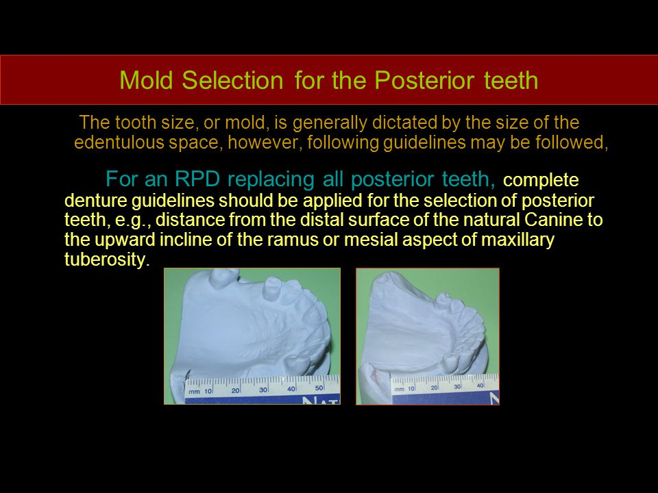 Mold Selection for the Posterior teeth