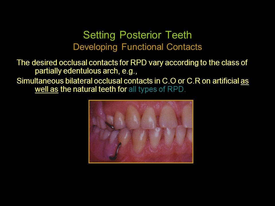 Setting Posterior Teeth Developing Functional Contacts