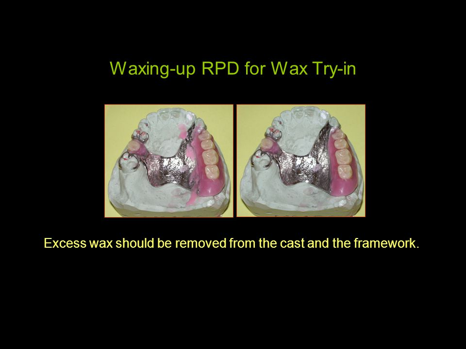 Waxing-up RPD for Wax Try-in