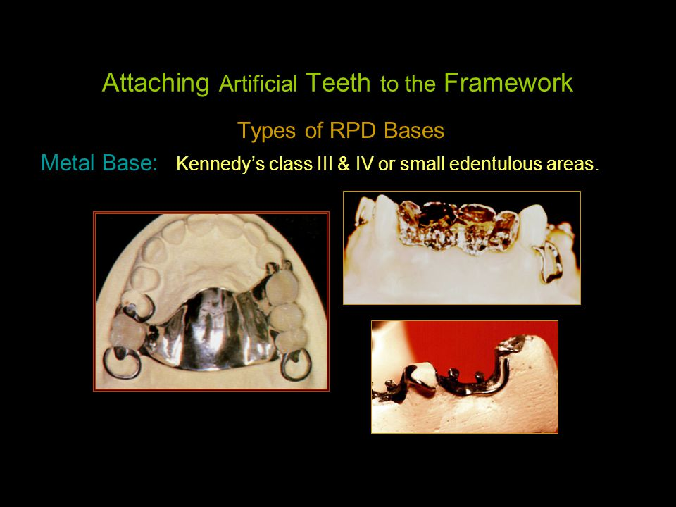 Attaching Artificial Teeth to the Framework