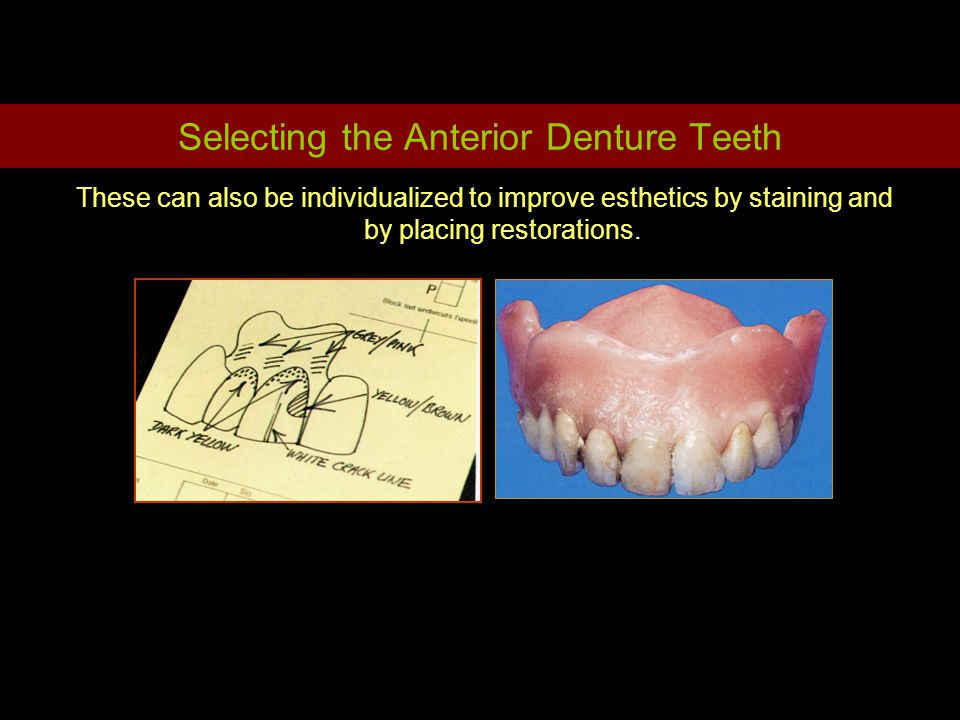 Selecting the Anterior Denture Teeth