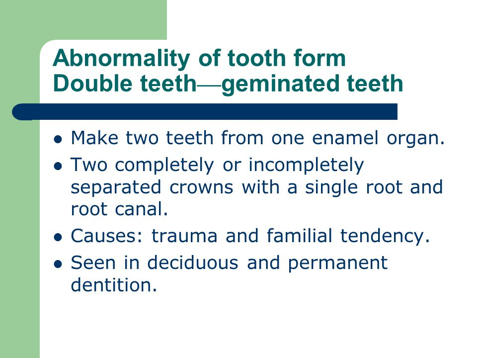 Abnormality of tooth form Double teeth—geminated teeth