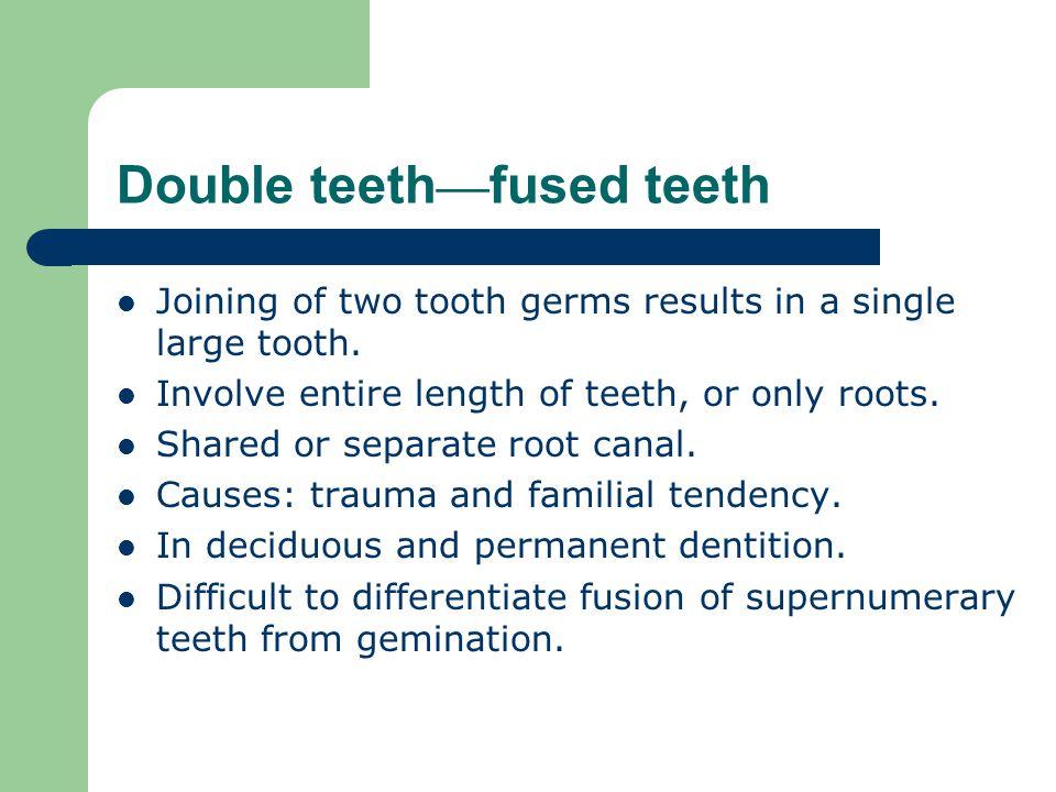 Double teeth—fused teeth