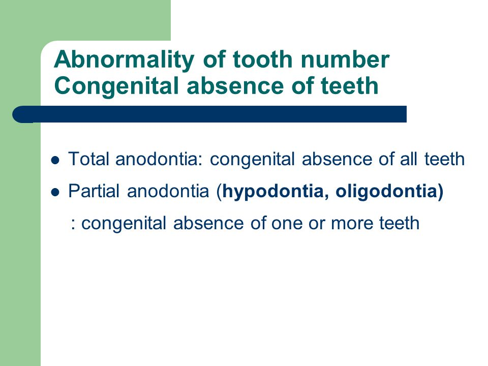Abnormality of tooth number Congenital absence of teeth