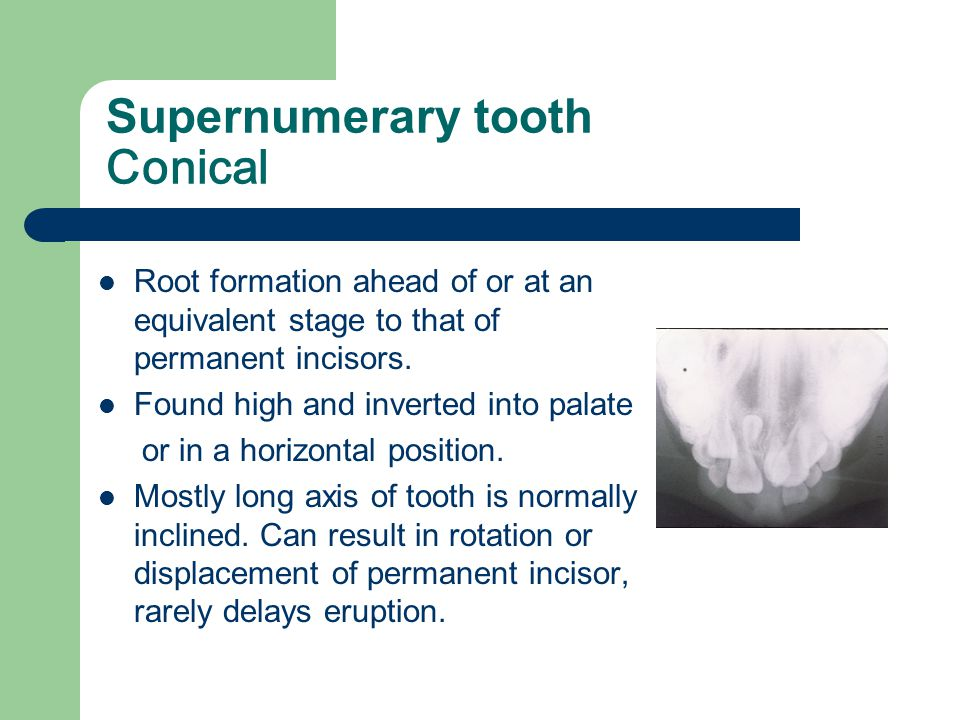 Supernumerary tooth Conical