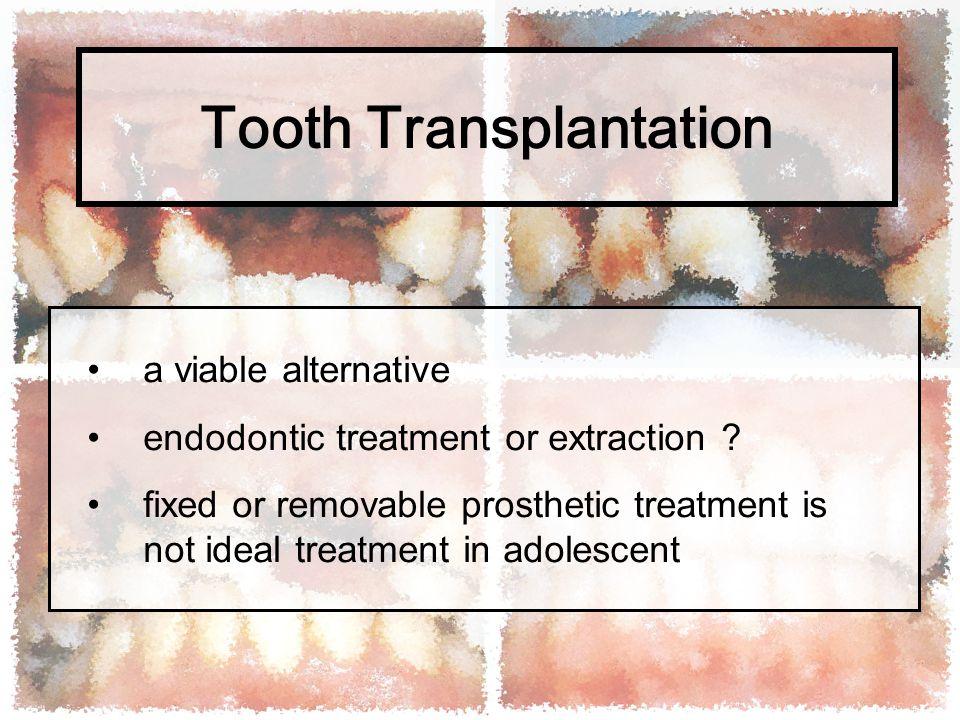 Tooth Transplantation