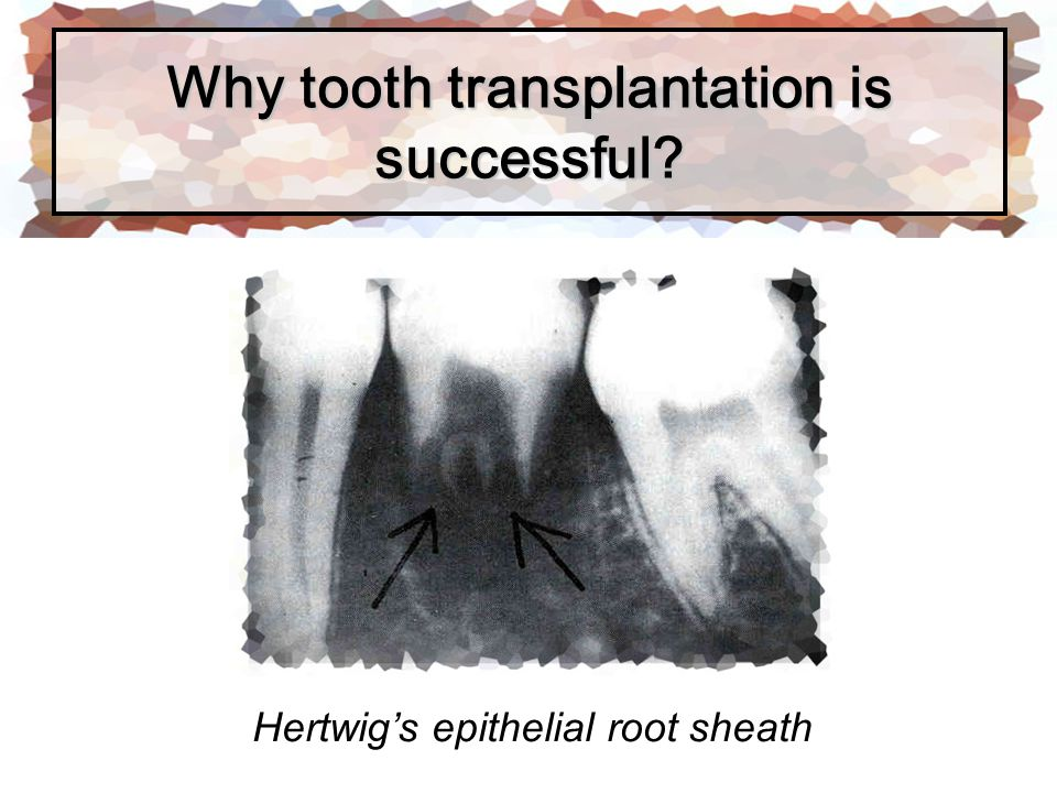 Why tooth transplantation is successful