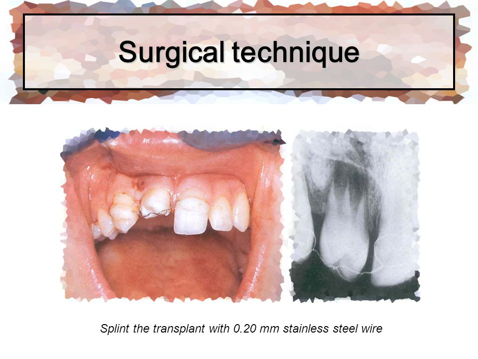 Splint the transplant with 0.20 mm stainless steel wire