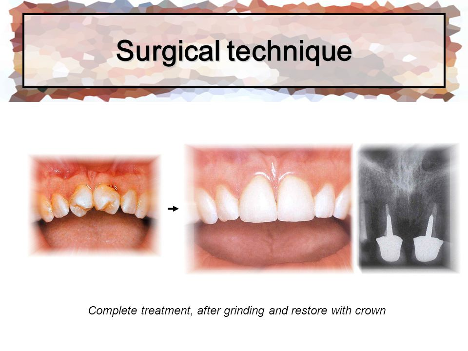 Surgical technique Complete treatment, after grinding and restore with crown