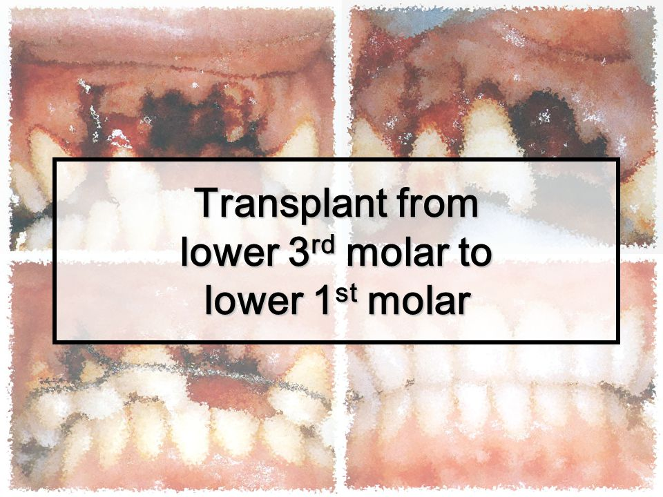 Transplant from lower 3rd molar to lower 1st molar