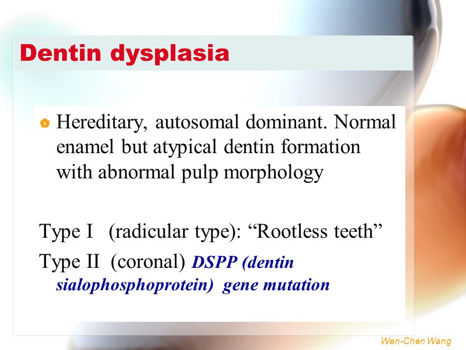 Dentin dysplasia Hereditary, autosomal dominant. Normal enamel but atypical dentin formation with abnormal pulp morphology.