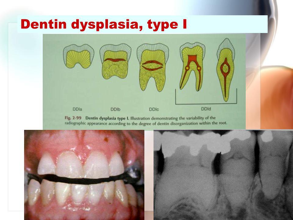 Dentin dysplasia, type I