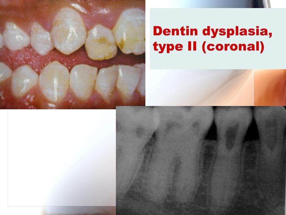 Dentin dysplasia, type II (coronal)