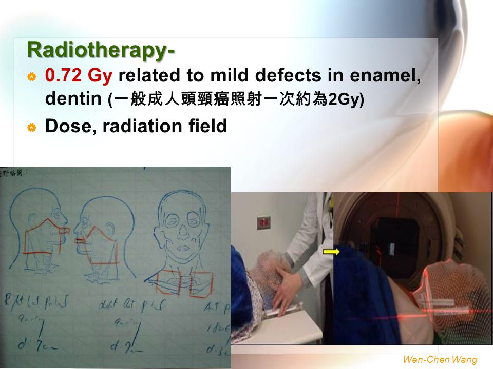Radiotherapy- 0.72 Gy related to mild defects in enamel, dentin (一般成人頭頸癌照射一次約為2Gy) Dose, radiation field.