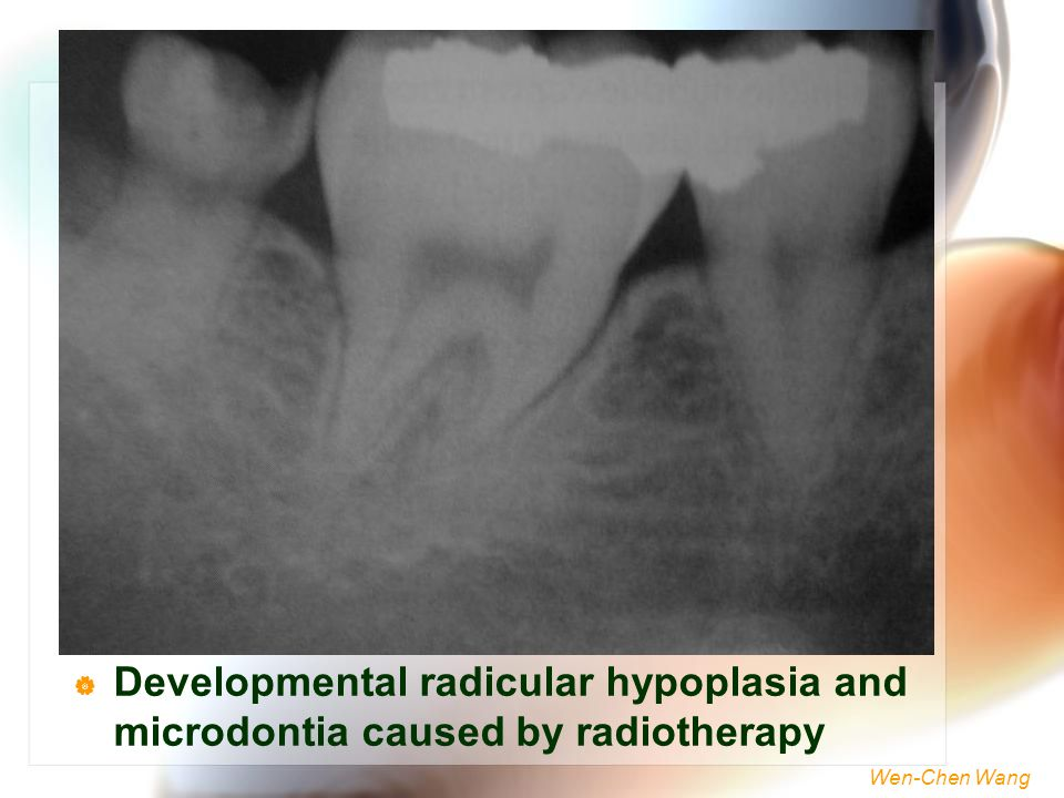 Developmental radicular hypoplasia and microdontia caused by radiotherapy