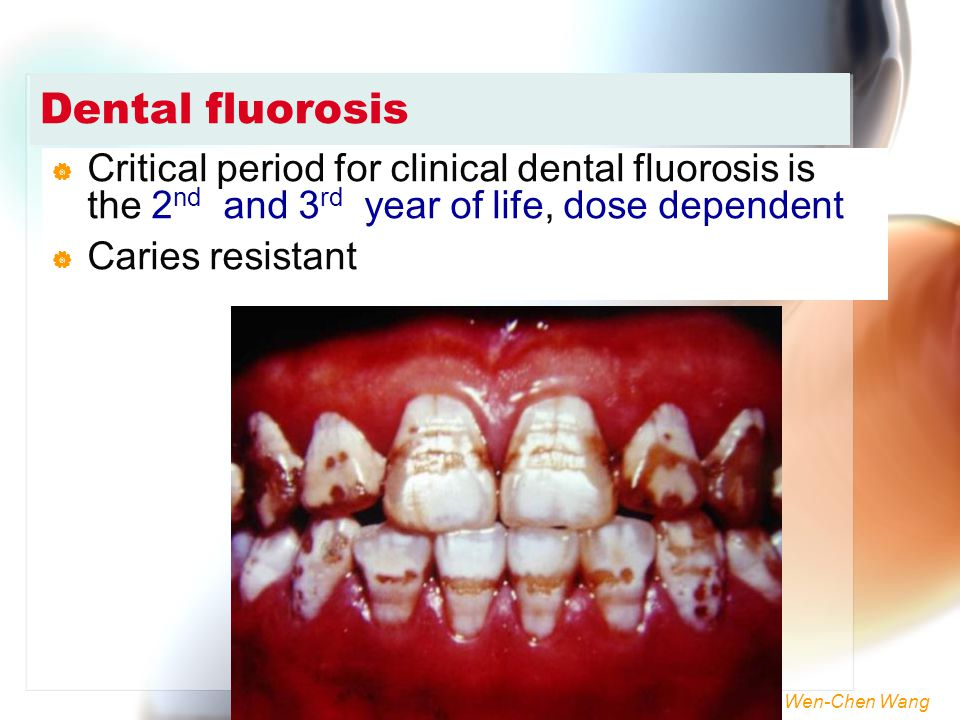Dental fluorosis Critical period for clinical dental fluorosis is the 2nd and 3rd year of life, dose dependent.
