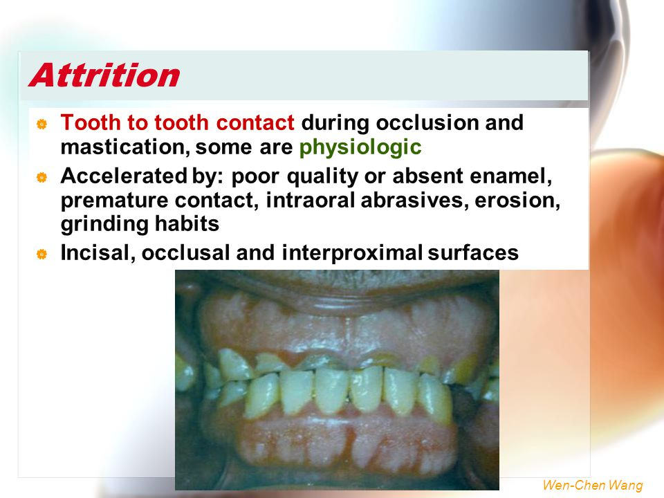 Attrition Tooth to tooth contact during occlusion and mastication, some are physiologic.