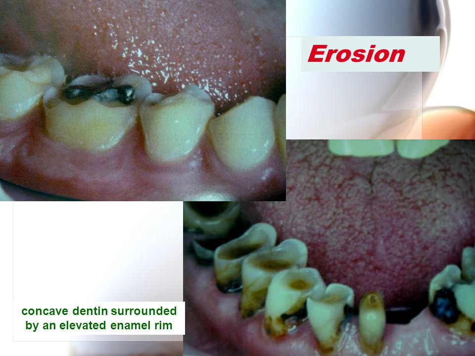 concave dentin surrounded by an elevated enamel rim