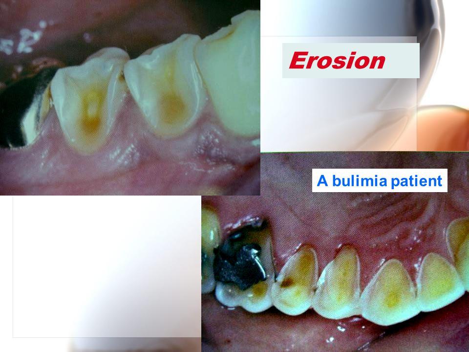 Erosion A bulimia patient