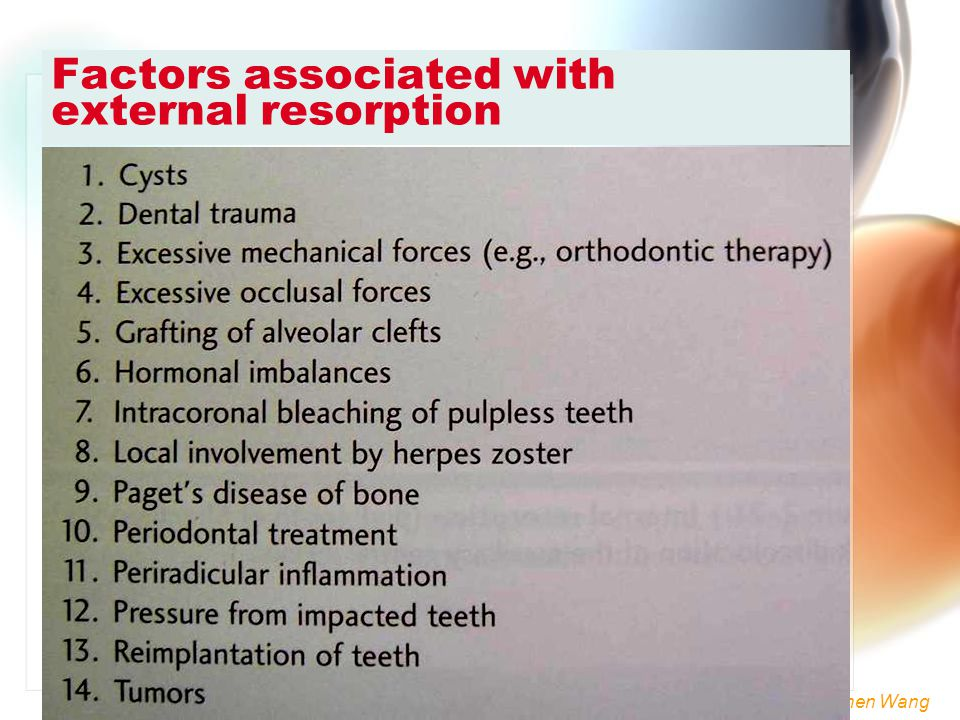 Factors associated with external resorption
