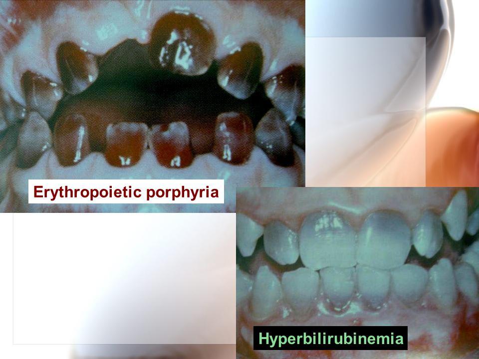 Erythropoietic porphyria