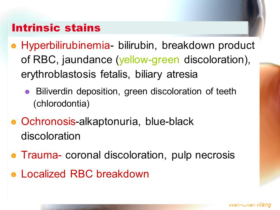 Ochronosis-alkaptonuria, blue-black discoloration