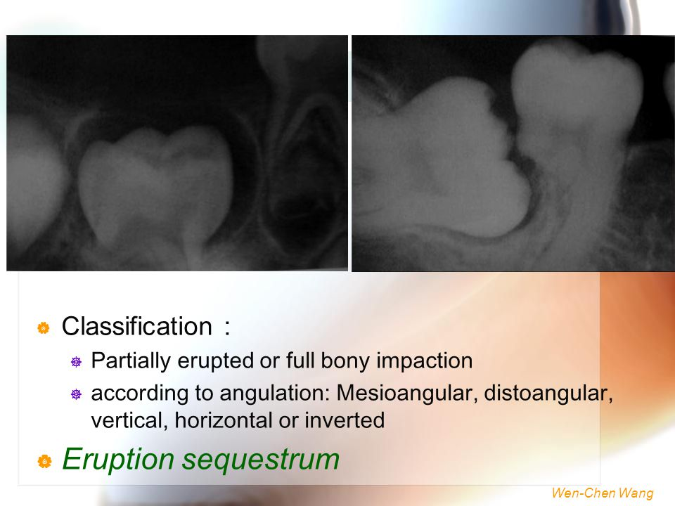 Eruption sequestrum Classification :