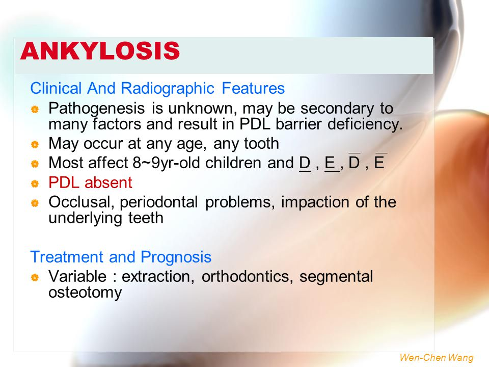 ANKYLOSIS Clinical And Radiographic Features