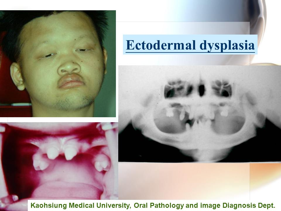 Ectodermal dysplasia Kaohsiung Medical University, Oral Pathology and image Diagnosis Dept.